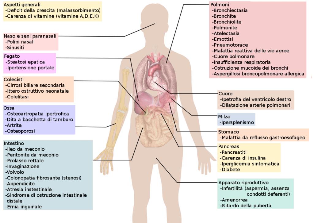Fibrosi cistica: uno studio italiano per migliorare l'efficacia dei farmaci. Credits: Wikipedia