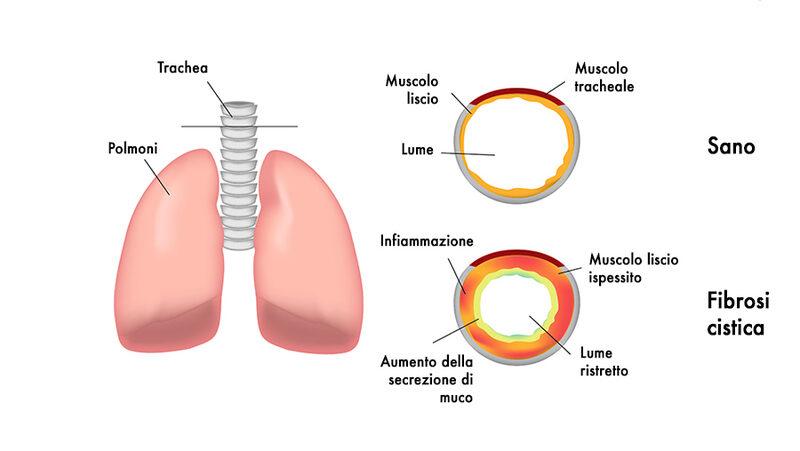 Fibrosi cistica: uno studio italiano per migliorare l'efficacia dei farmaci. Credits: doveecomemicuro.it