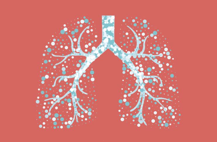 Fibrosi cistica: uno studio italiano per migliorare l'efficacia dei farmaci.