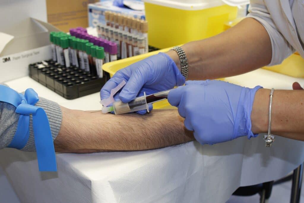 Sindrome di Guillain-Barré: possibile legame con il vaccino Johnson & Johnson