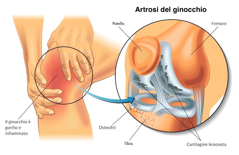 Artrosi ginocchio