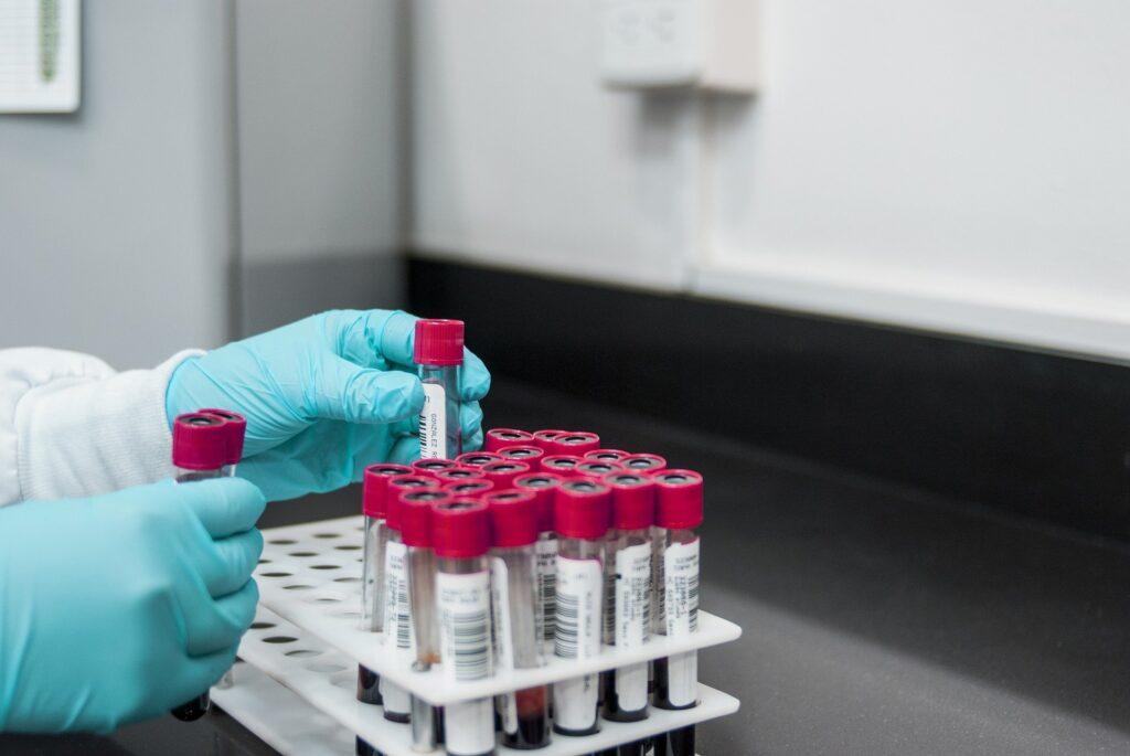 Esame del sangue per diagnosticare l'Alzheimer